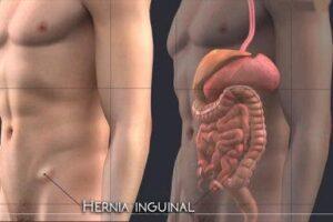 hernia inguinal bilateral
