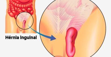 hernia inguinal indirecta